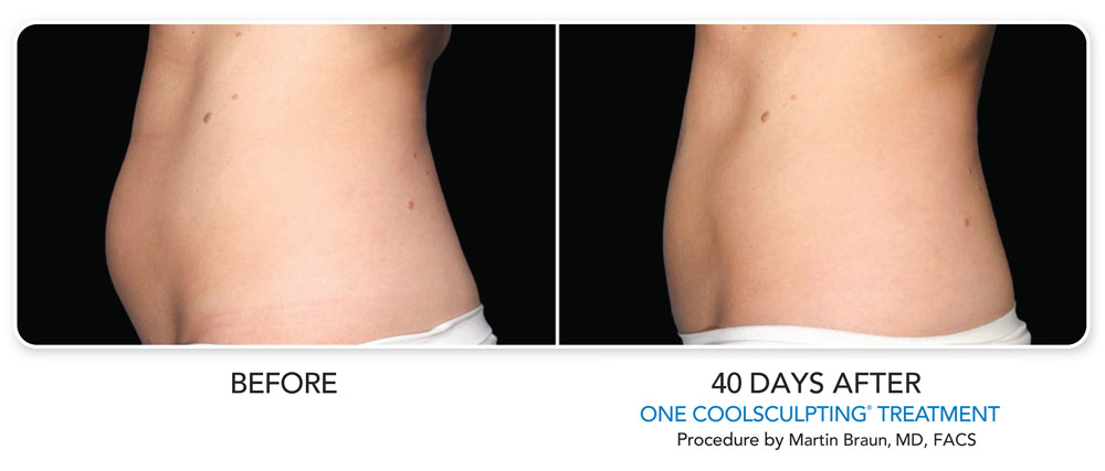 Coolsculpting Before and After Photo Results 40 Days After First Procedure