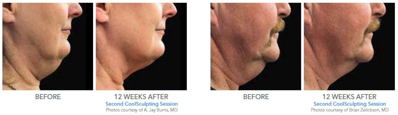 Coolsculpting Before and After Photo Results 12 Weeks After Second Procedure