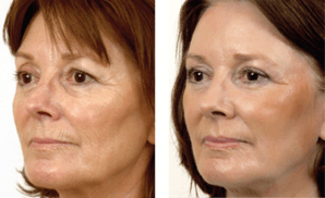 Before and After Erbium Laser Treatment